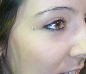 dermal-anchor-300x257