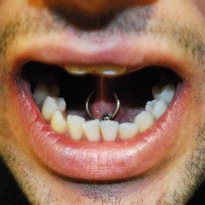Guy-tongue-piercing-webbing